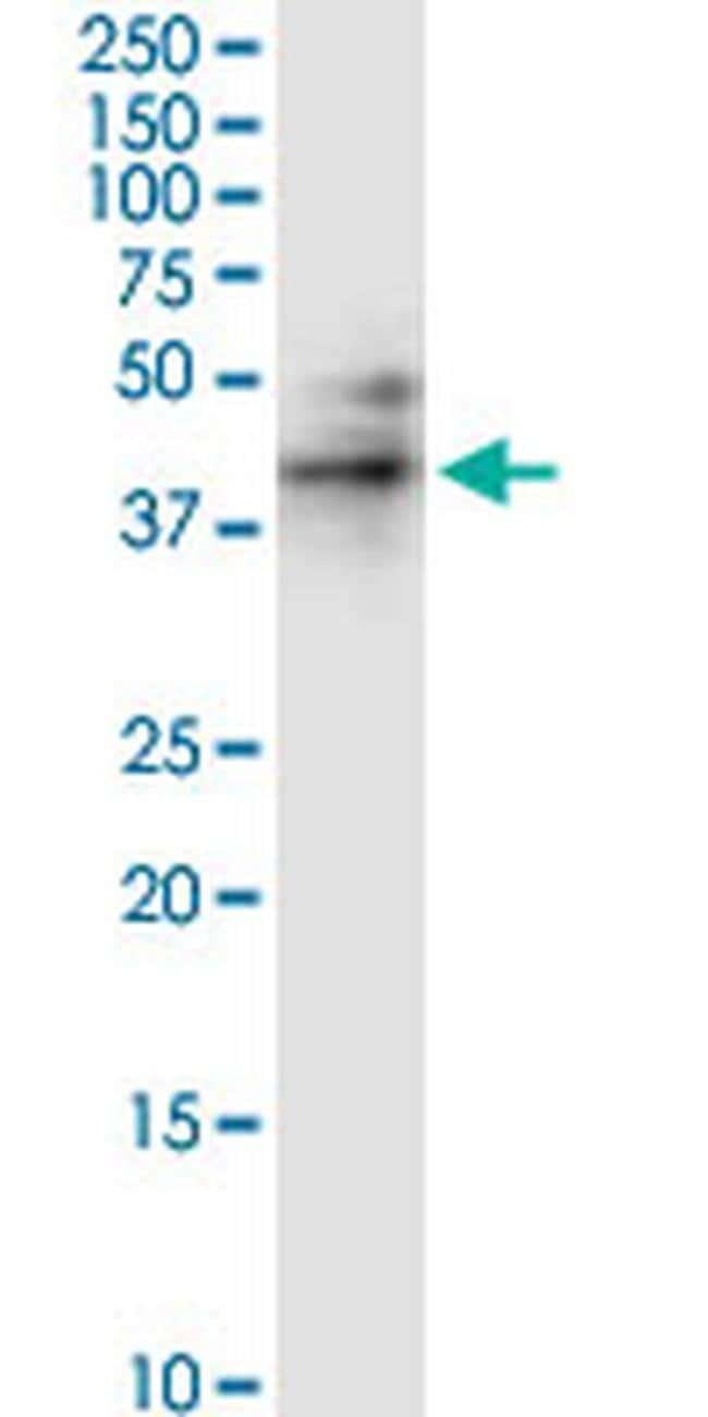 RUNDC3A Mouse anti-Human, Rat, Clone: 1A8, Invitrogen 100 µg; Unconjugated