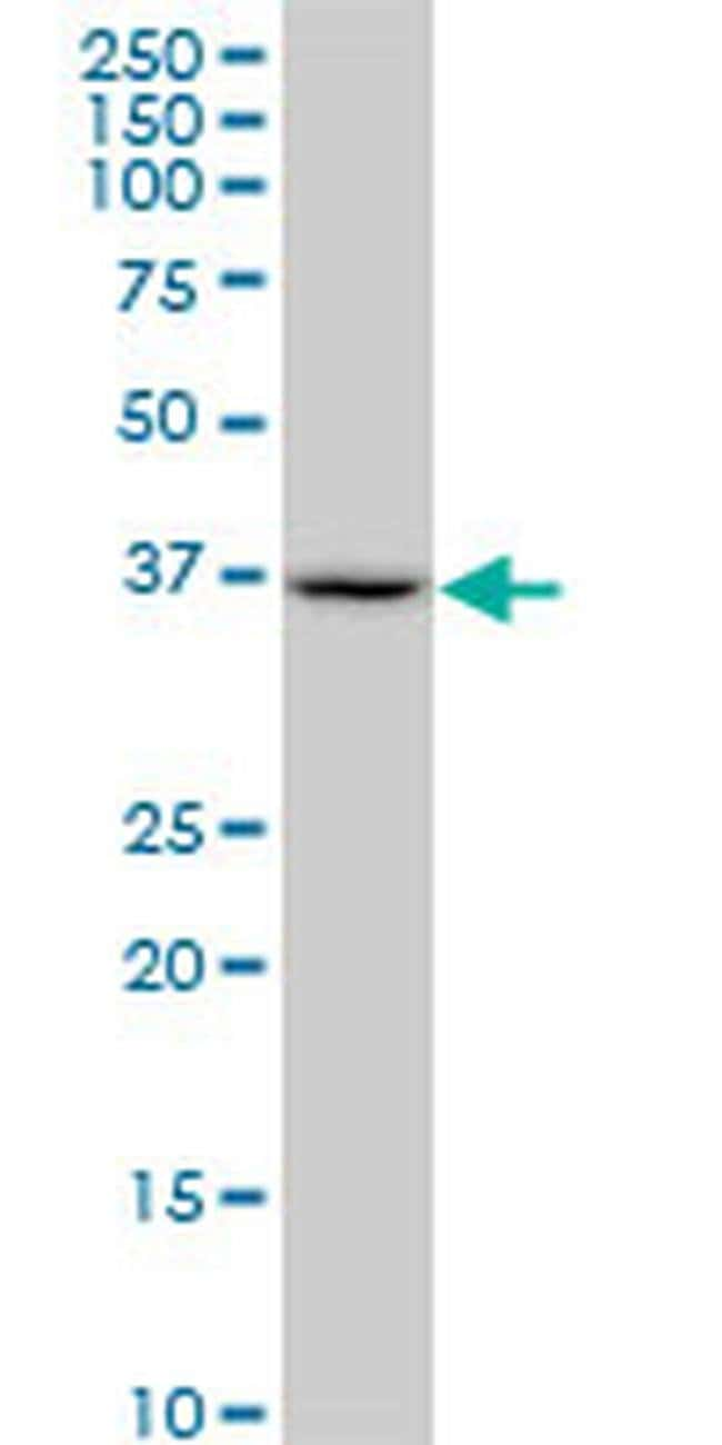 SUGT1 Mouse anti-Human, Mouse, Rat, Clone: 1A10, Invitrogen 100 µg;