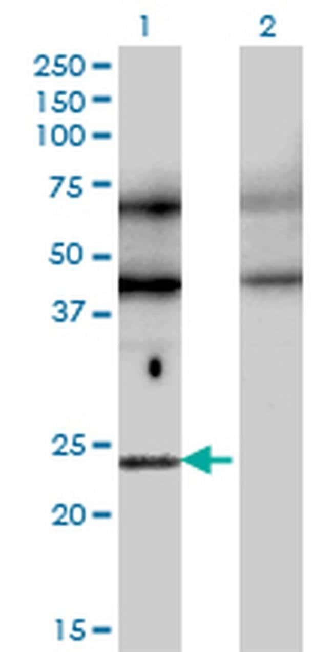 TFEC Mouse anti-Human, Clone: 4F11, Invitrogen 100 µg; Unconjugated