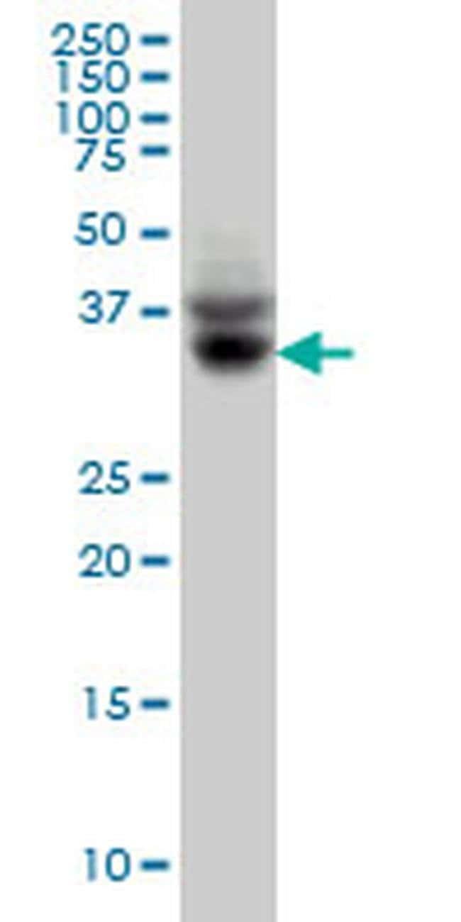 SLC35A3 Mouse anti-Human, Clone: 4B6, Invitrogen 100 µg; Unconjugated