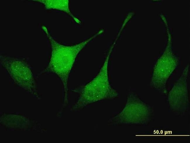 FBXW4P1 Mouse anti-Human, Clone: 2C5, Invitrogen 100 µg; Unconjugated