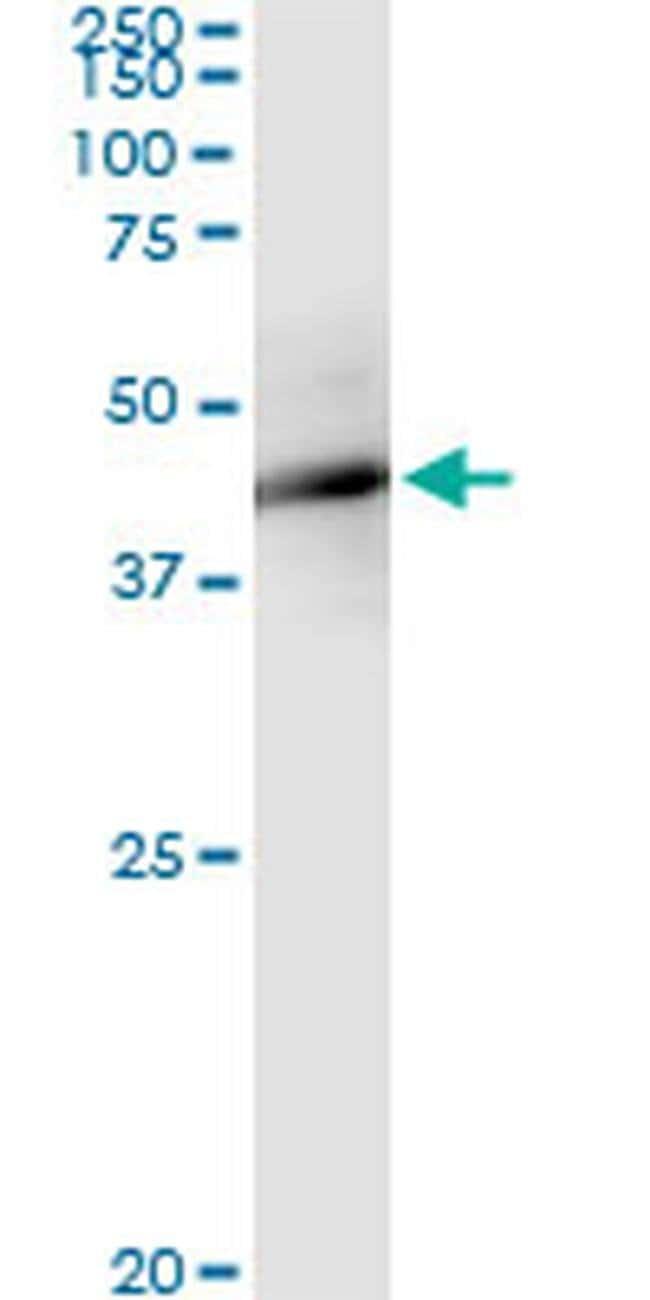 FBXO4 Mouse anti-Human, Clone: 2F2, Invitrogen 100 µg; Unconjugated