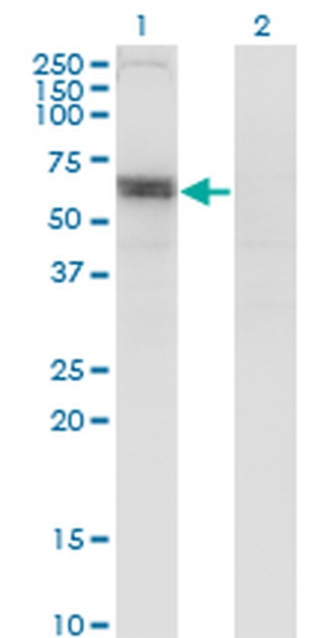SLC6A16 Mouse anti-Human, Clone: 2E5, Invitrogen 100 µg; Unconjugated