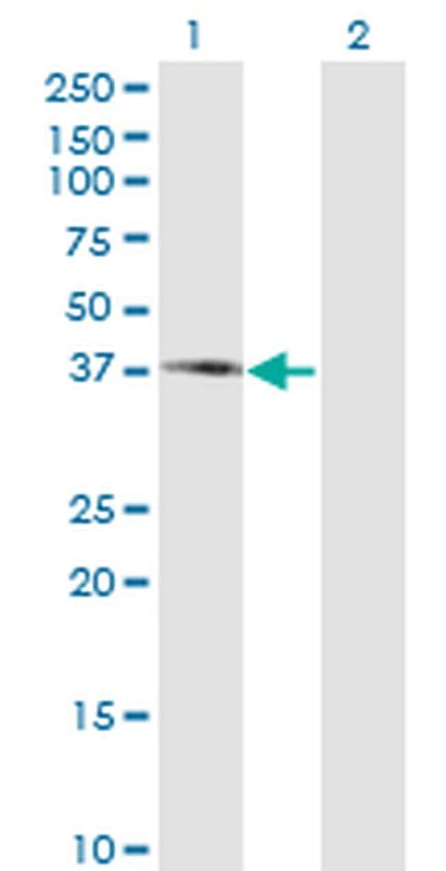 PIPOX Mouse anti-Human, Clone: 3D1, Invitrogen 100 µg; Unconjugated