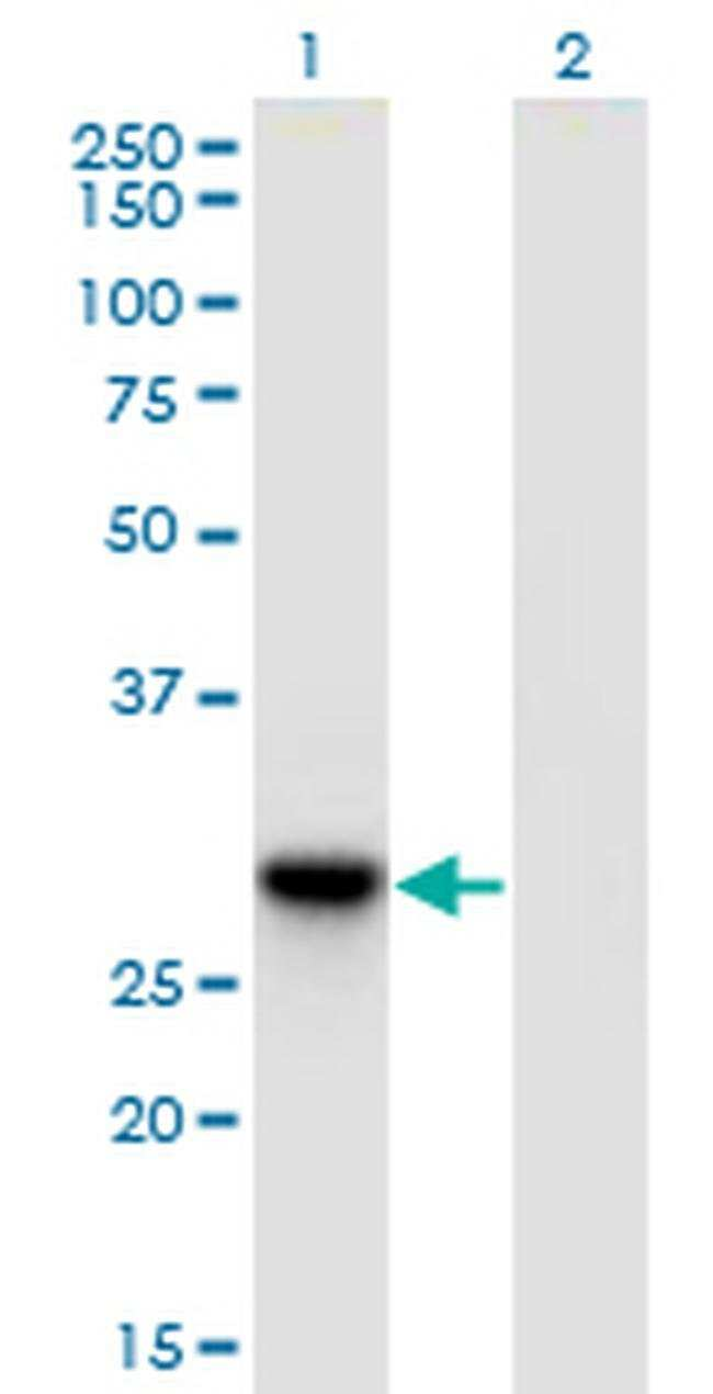 DNAJC27 Mouse anti-Human, Clone: 3C1, Invitrogen 100 µg; Unconjugated
