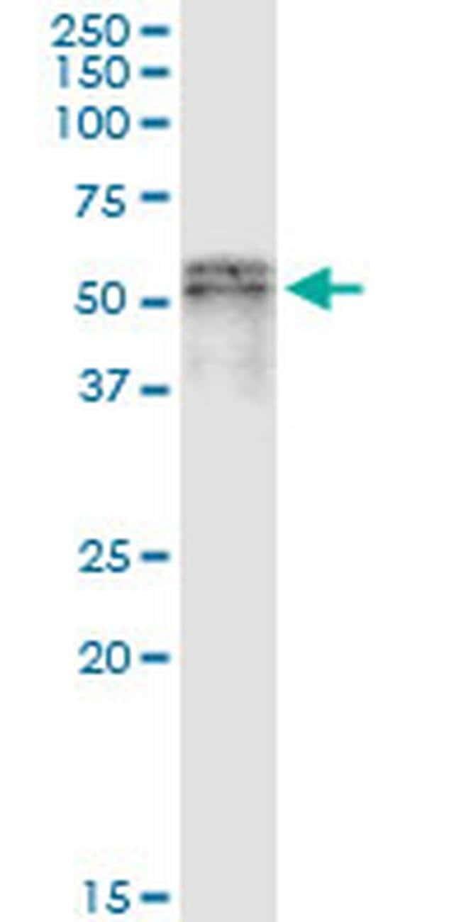 SCLY Mouse anti-Human, Clone: 3B2, Invitrogen 100 µg; Unconjugated