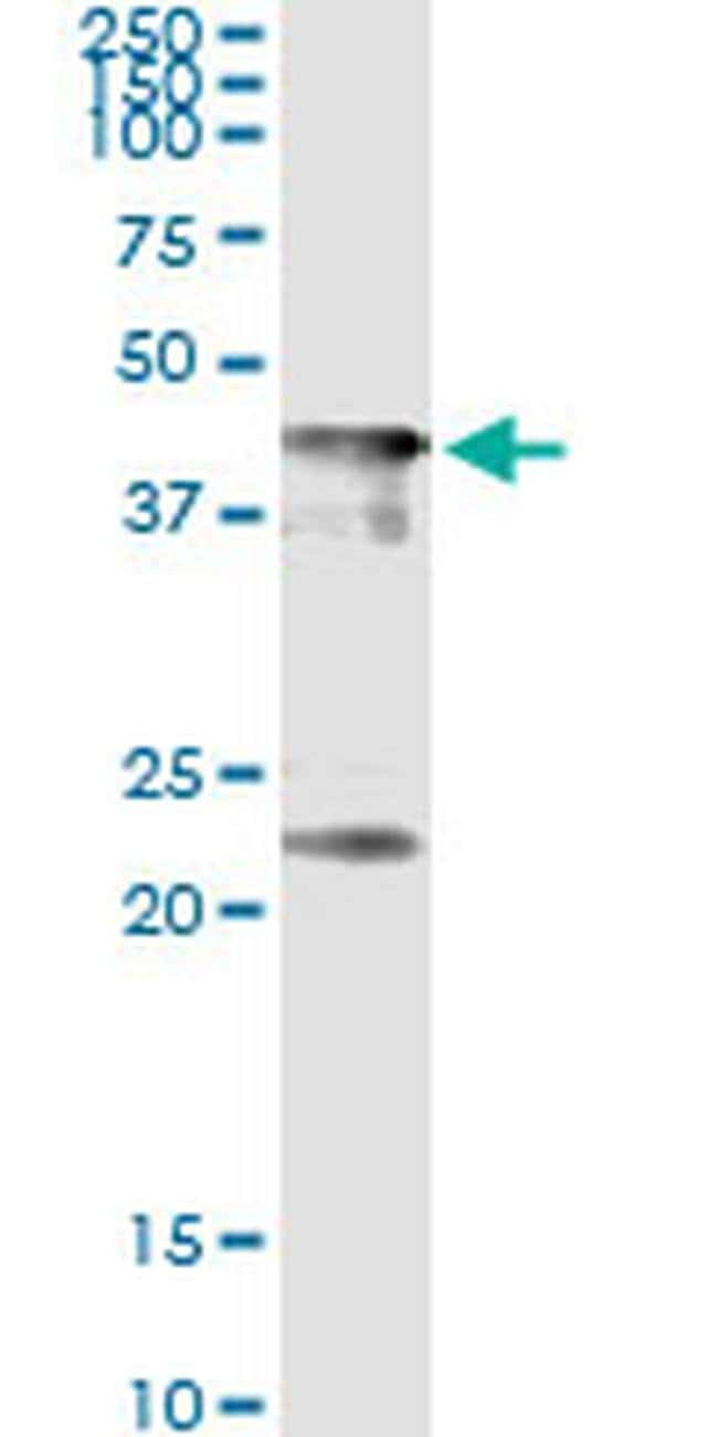 CENPJ Mouse anti-Human, Clone: 1A5, Invitrogen 50 µg; Unconjugated