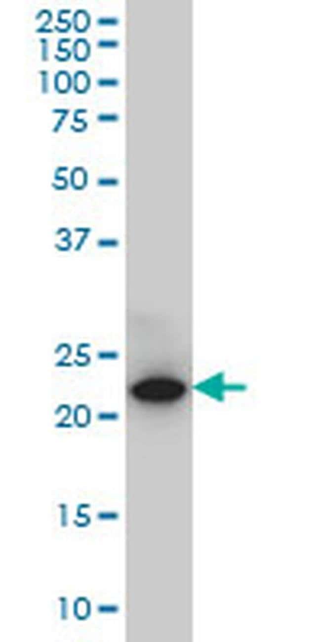 SPRYD7 Mouse anti-Human, Rat, Clone: 2G4, Invitrogen 100 µg; Unconjugated