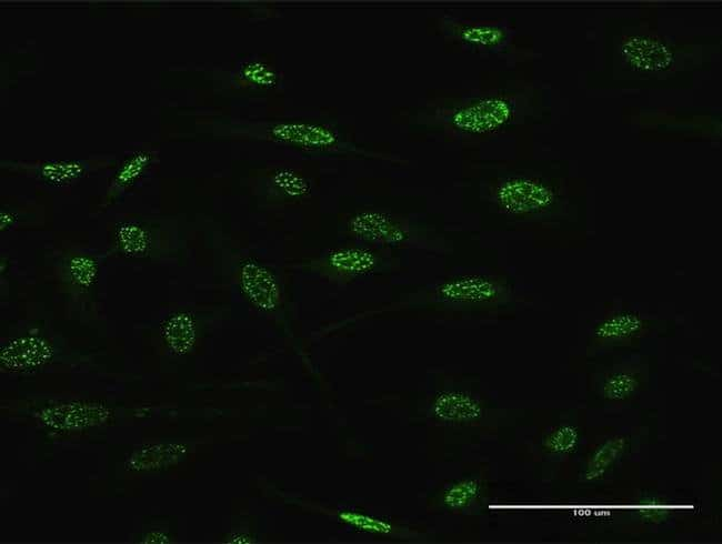 TGIF2 Mouse anti-Human, Clone: 4B10, Invitrogen 100 µg; Unconjugated