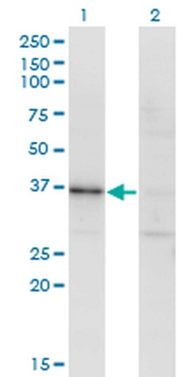RBKS Mouse anti-Human, Clone: 3B4, Invitrogen 100 µg; Unconjugated