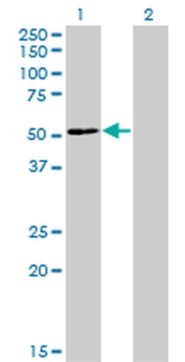 ZNF323 Mouse anti-Human, Clone: 4F7, Invitrogen 100 µg; Unconjugated