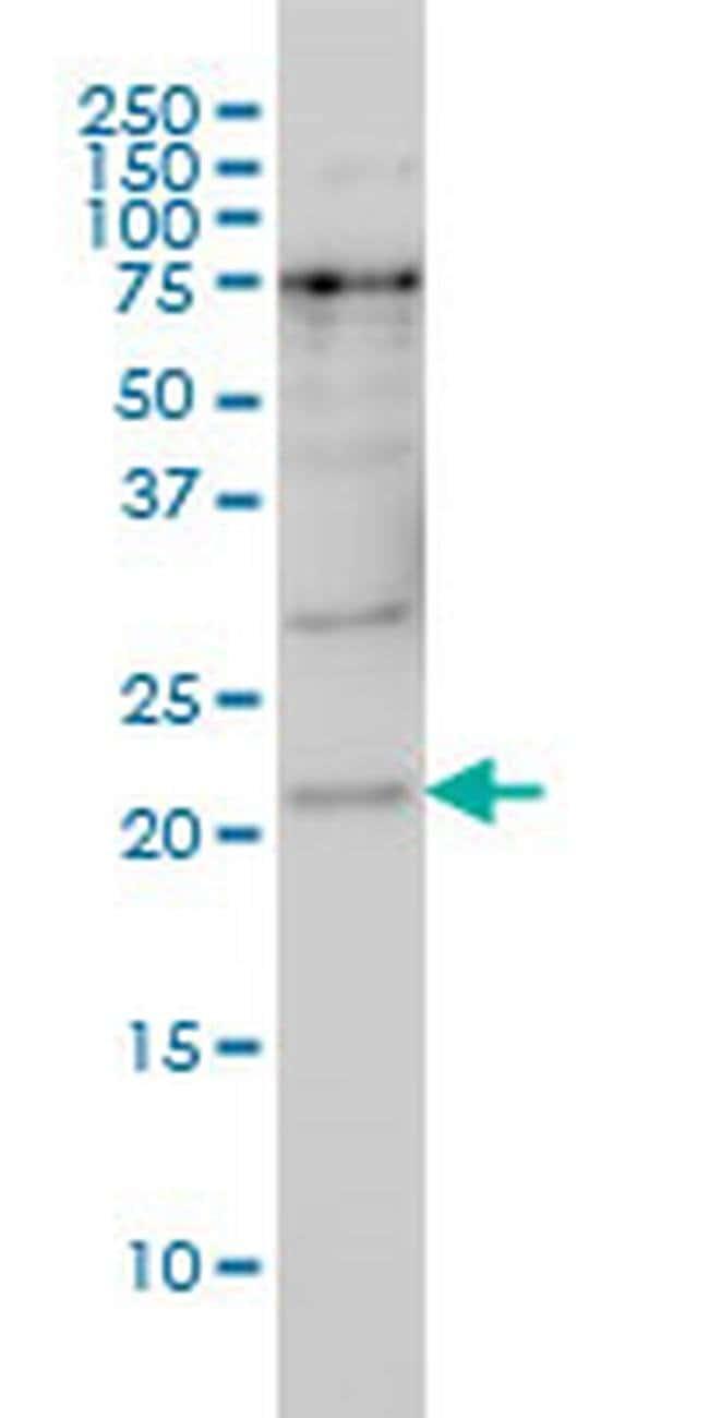 PRKRIP1 Mouse anti-Human, Clone: 4D11-3F11, Invitrogen 100 µg; Unconjugated