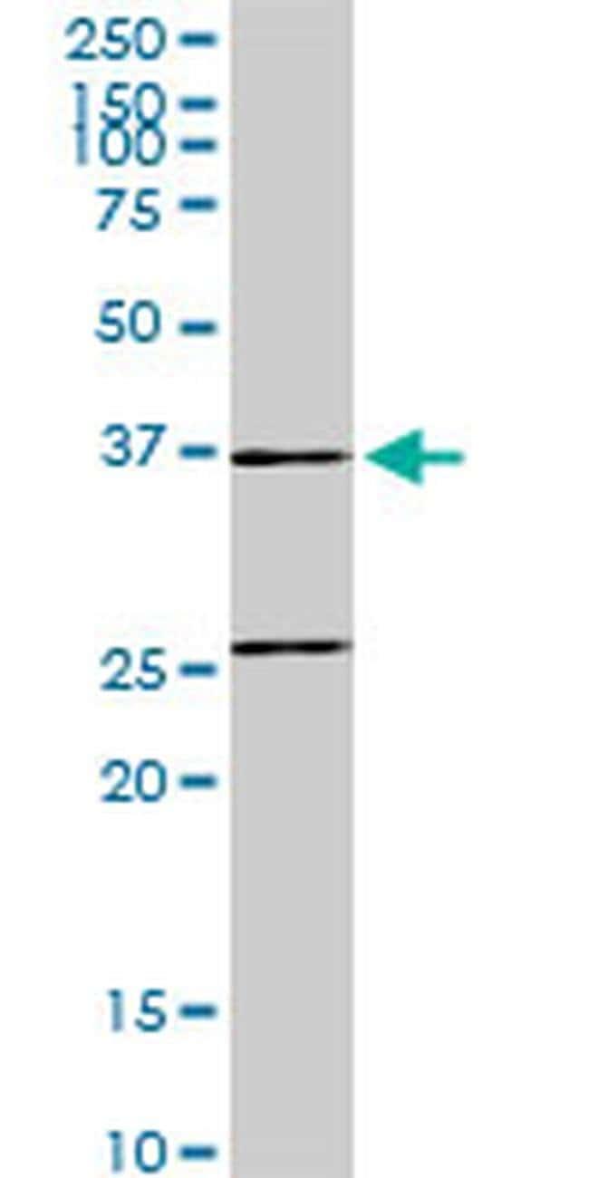 SNX29 Mouse anti-Human, Mouse, Clone: 6D6, Invitrogen 100 µg; Unconjugated