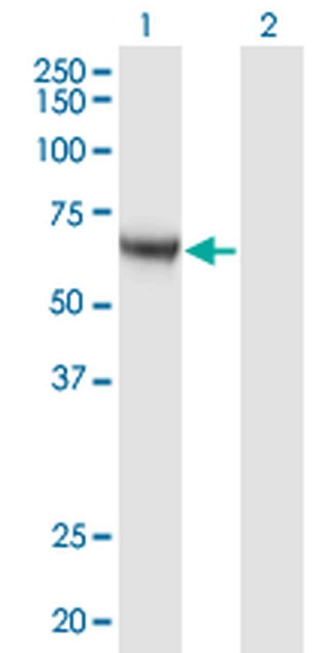 CaMKK alpha Mouse anti-Human, Clone: 4A11, Invitrogen 100 µg; Unconjugated