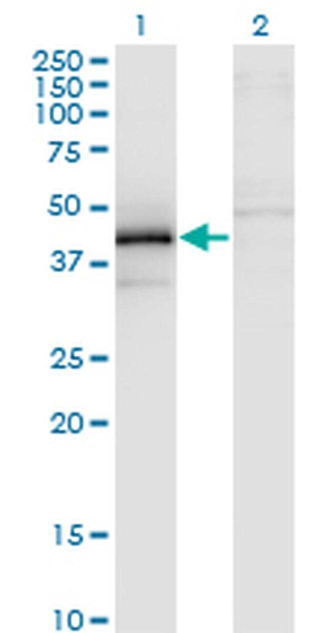 ZFYVE19 Mouse anti-Human, Clone: 3G4-2B11, Invitrogen 100 µg; Unconjugated