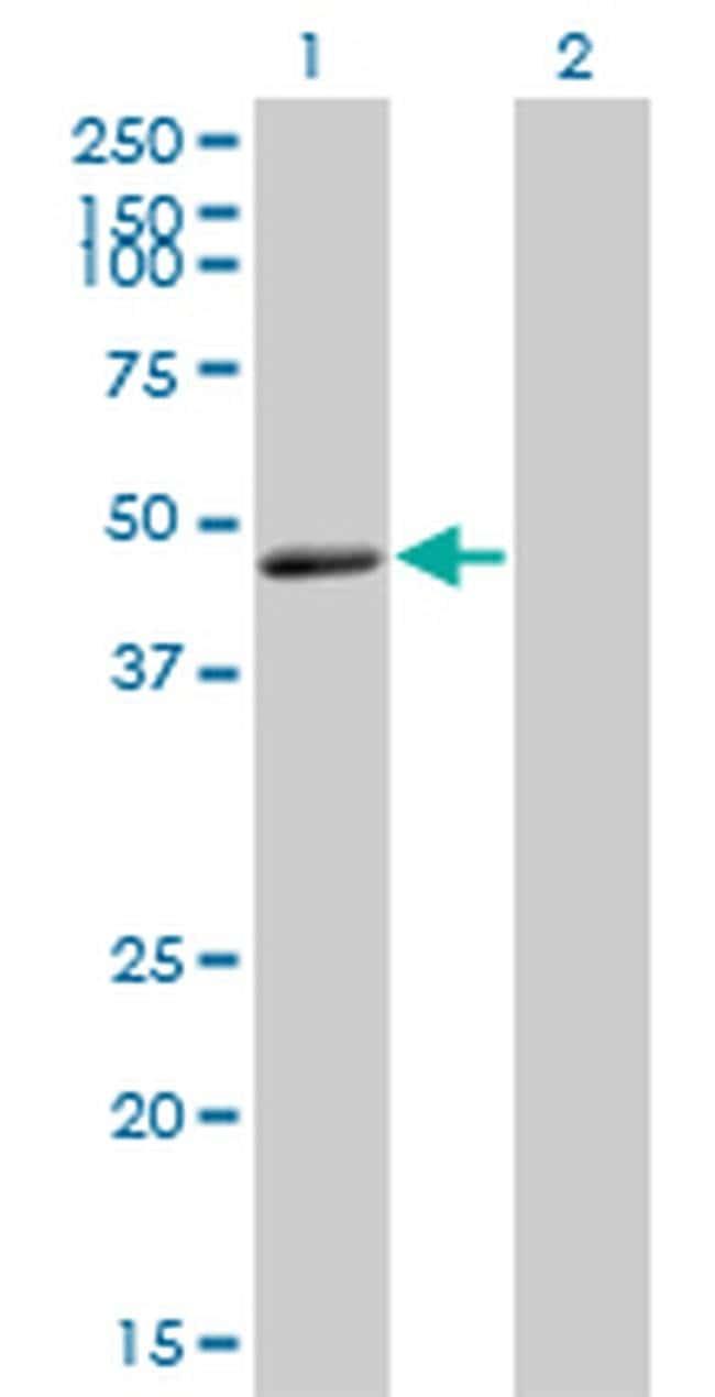 TNFRSF19L Mouse anti-Human, Clone: 3F8, Invitrogen 100 µg; Unconjugated