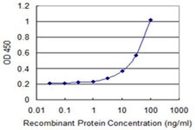 SLC25A21 Mouse anti-Human, Clone: 2C9, Invitrogen 100 µg; Unconjugated