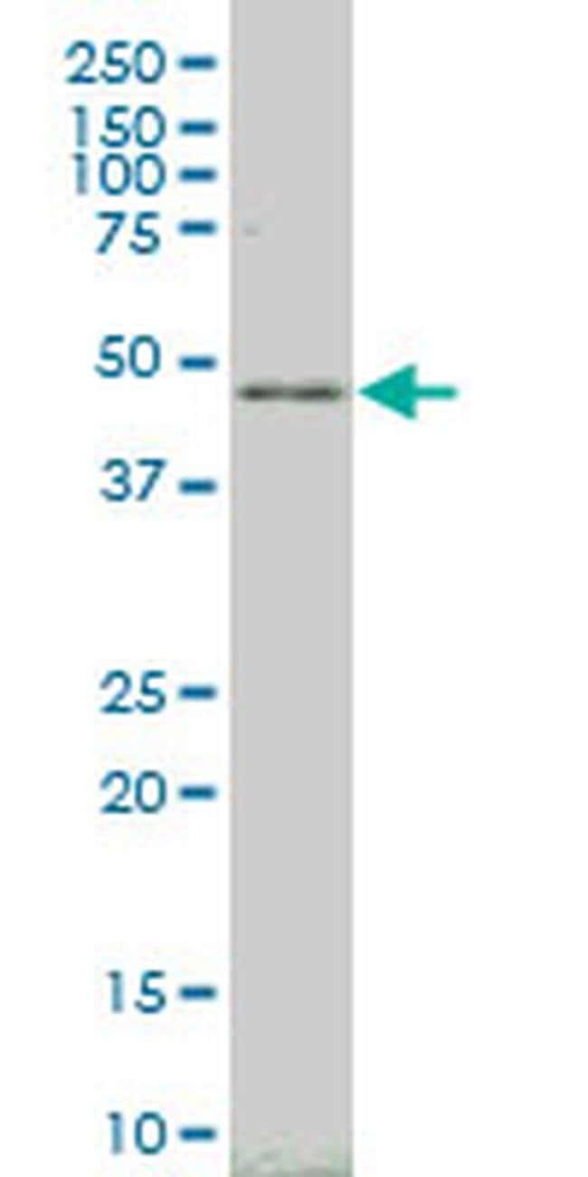 LHX4 Mouse anti-Human, Clone: 3B4, Invitrogen 100 µg; Unconjugated