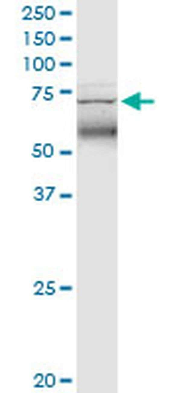 TRIM47 Mouse anti-Human, Clone: 3C8, Invitrogen 100 µg; Unconjugated