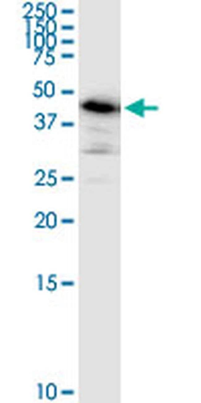 ARMC6 Mouse anti-Human, Clone: 2H8, Invitrogen 100 µg; Unconjugated