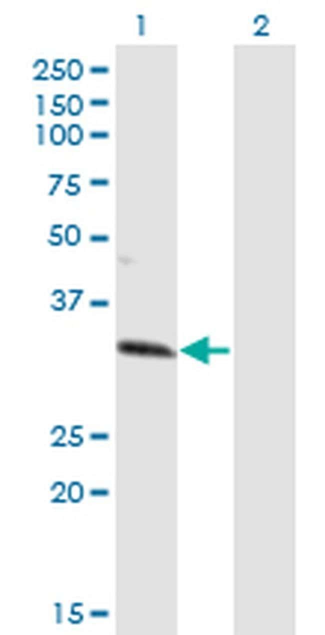 ZNF101 Mouse anti-Human, Clone: 2D5, Invitrogen 100 µg; Unconjugated
