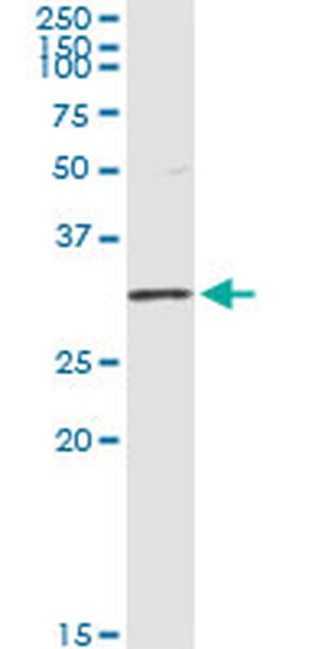 OLIG1 Mouse anti-Human, Clone: 2A4, Invitrogen 100 µg; Unconjugated