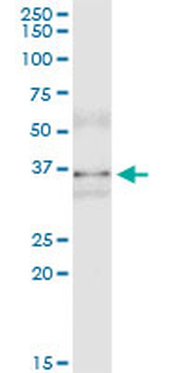 MSI2 Mouse anti-Human, Clone: 3B6, Invitrogen 100 µg; Unconjugated