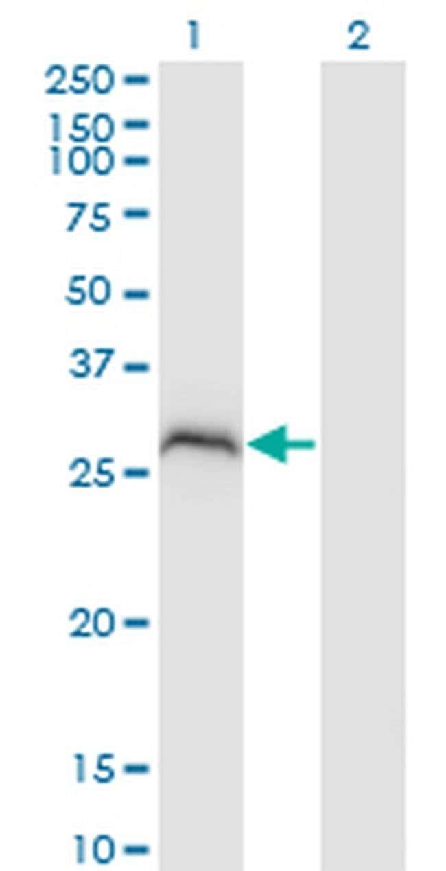 PPP1R2P3 Mouse anti-Human, Clone: 1H2, Invitrogen 100 µg; Unconjugated