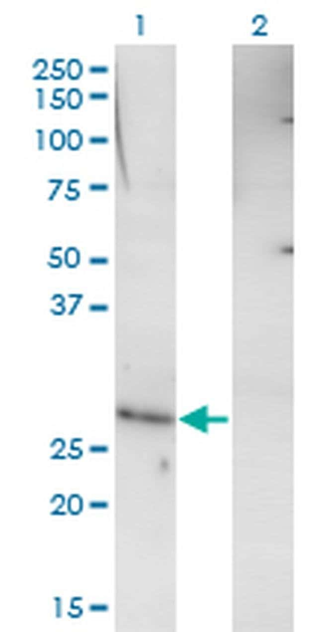 RHOXF1 Mouse anti-Human, Clone: 4D12, Invitrogen 100 µg; Unconjugated