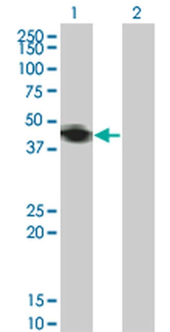 RNF133 Mouse anti-Human, Clone: 3D6, Invitrogen 100 µg; Unconjugated