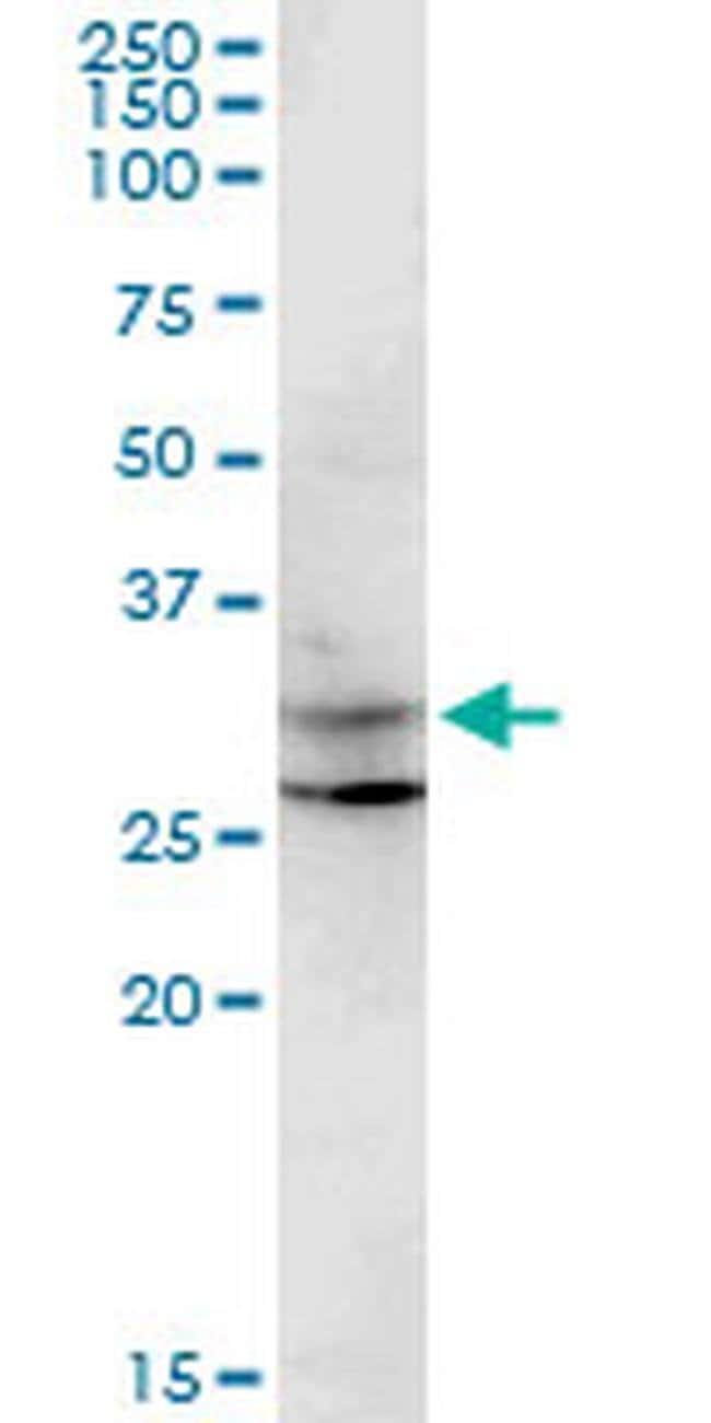 CENPP Mouse anti-Human, Clone: 3G8, Invitrogen 100 µg; Unconjugated