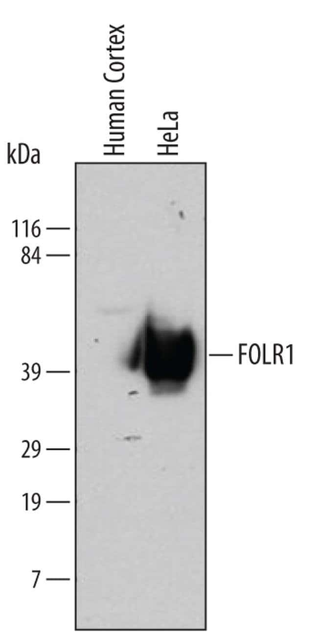 Folate Receptor alpha Mouse anti-Human, Clone: 548908, Invitrogen 100 µg;