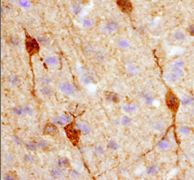 Calbindin D28K Mouse anti-Human, Clone: 401025, Invitrogen 100 µg;