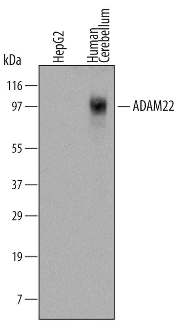 ADAM22 Mouse anti-Human, Clone: 498805, Invitrogen 100 µg; Unconjugated