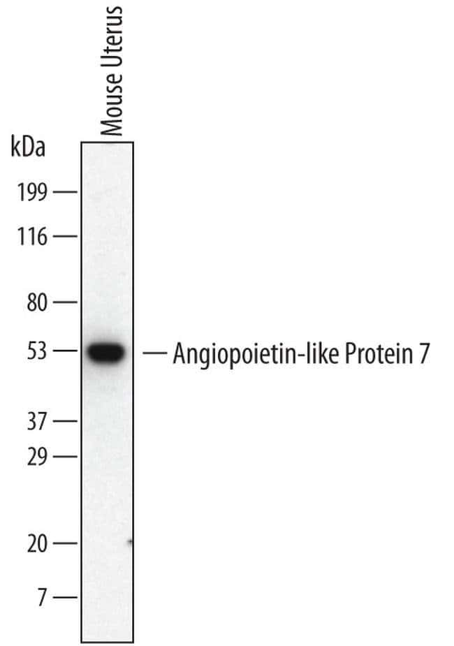 ANGPTL7 Rat anti-Mouse, Clone: 538401, Invitrogen 100 µg; Unconjugated