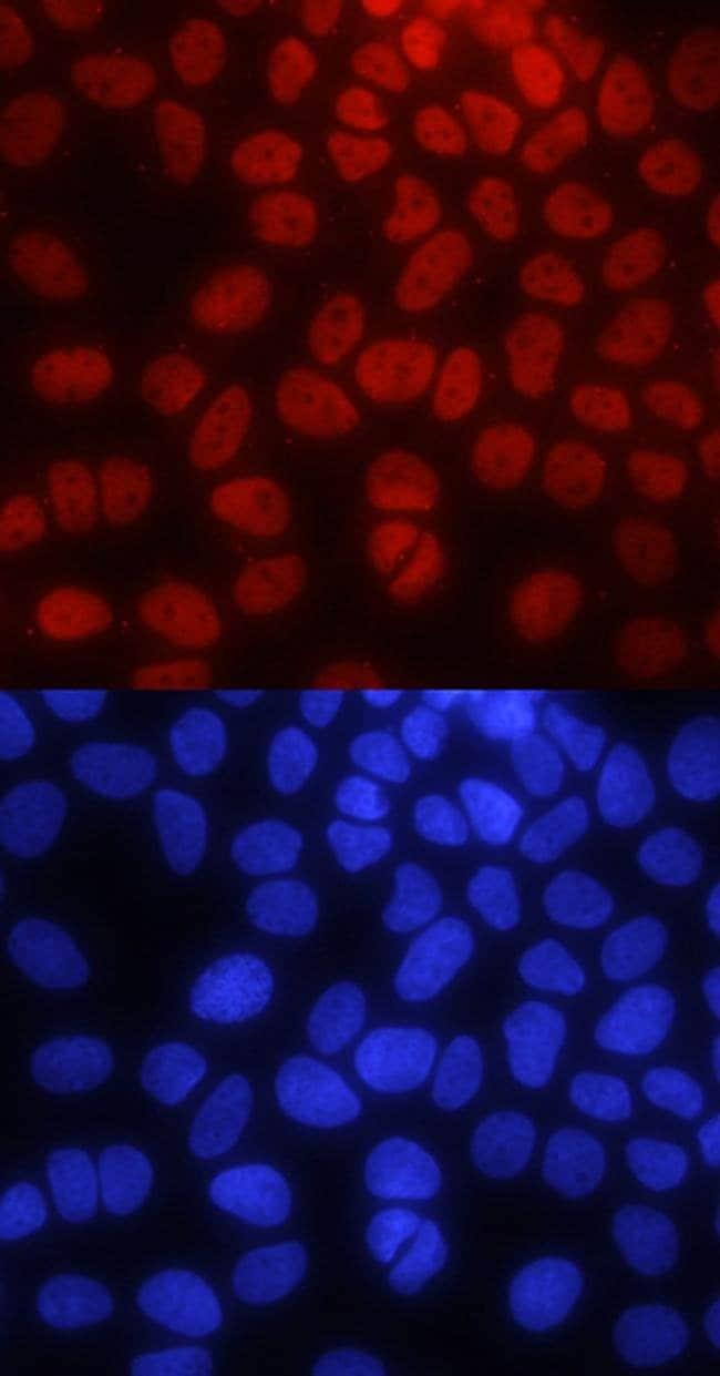 PYGO2 Mouse anti-Human, Clone: 539730, Invitrogen 100 µg; Unconjugated