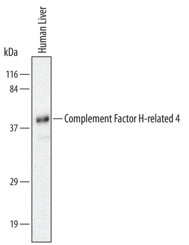 CFHR4 Mouse anti-Human, Clone: 640212, Invitrogen 100 µg; Unconjugated