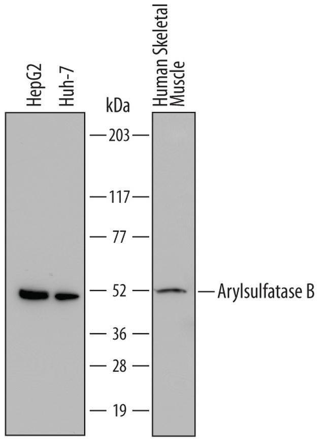 Arylsulfatase B Mouse anti-Human, Clone: 708401, Invitrogen 100 µg;