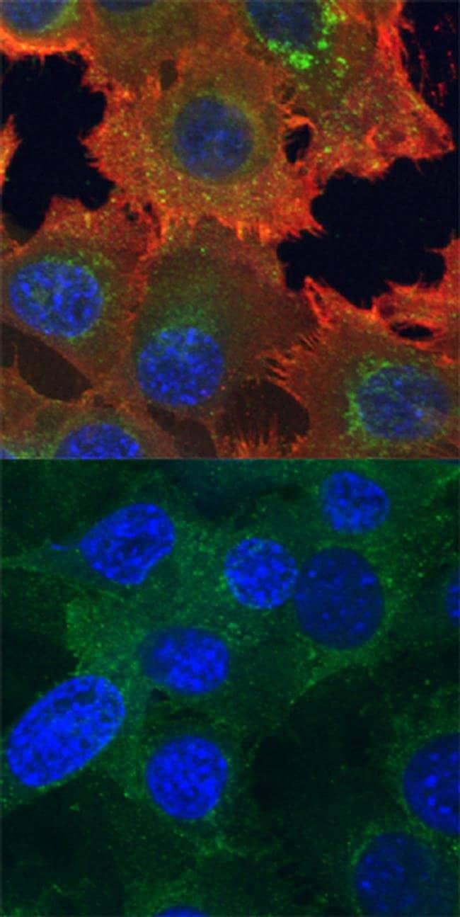Phospho-Axl (Tyr779) Mouse anti-Human, Clone: 713610, Invitrogen 100 µg;