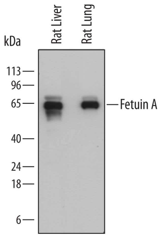 Fetuin A Mouse anti-Rat, Clone: 774761, Invitrogen 100 µg; Unconjugated