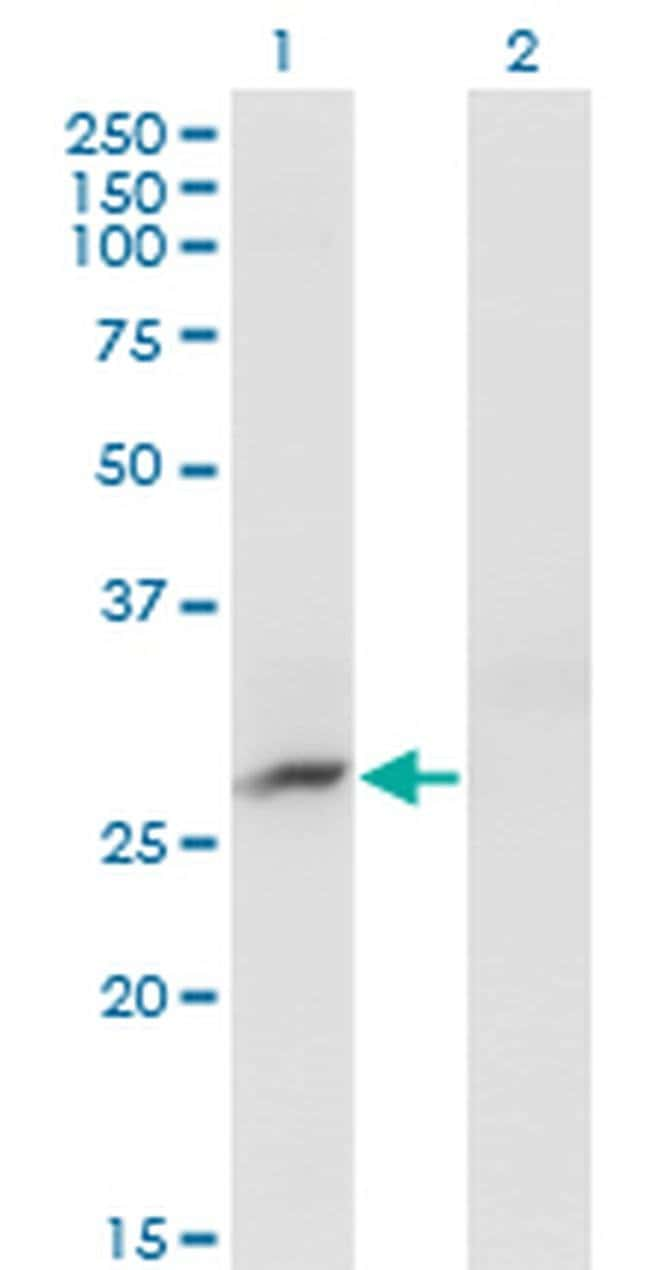 CRYBB3 Mouse anti-Human, Clone: 4H6, Invitrogen 100 µg; Unconjugated
