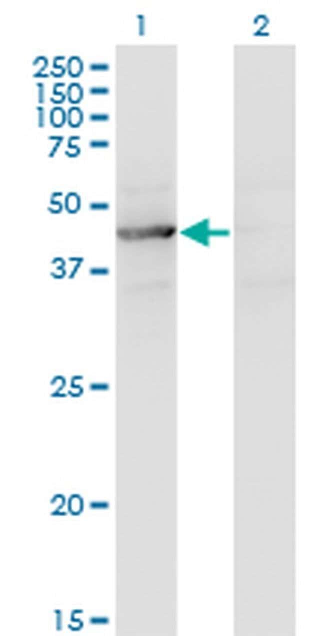 TEX28 Mouse anti-Human, Clone: 1A8, Invitrogen 100 µg; Unconjugated