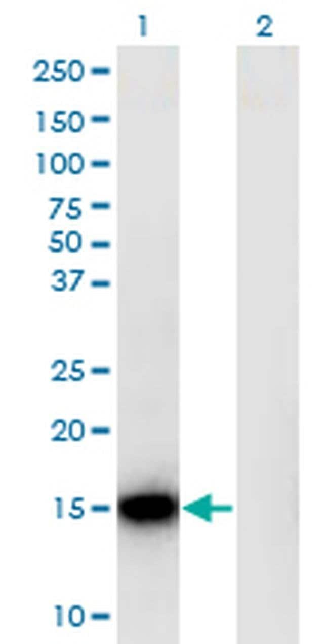RPLP1 Mouse anti-Human, Clone: 1G10, Invitrogen 100 µg; Unconjugated