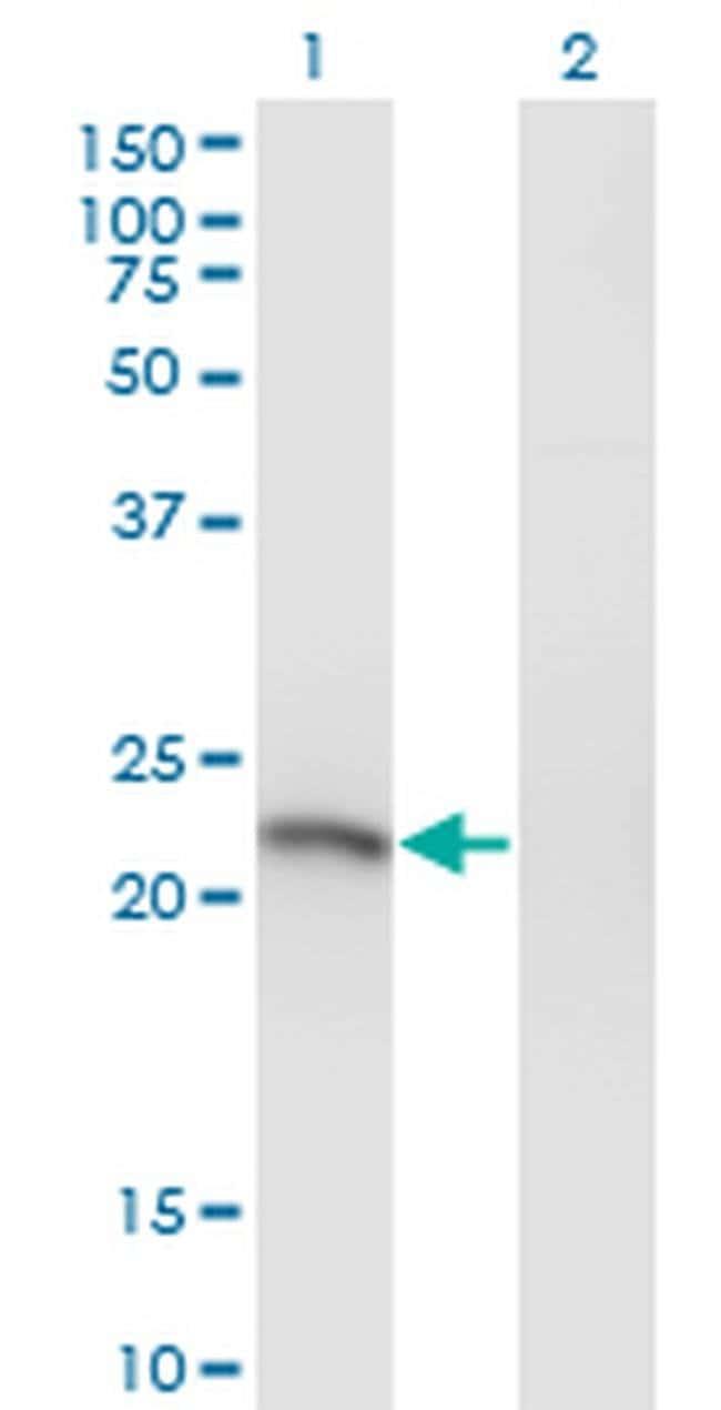 SSX3 Mouse anti-Human, Clone: 4A11, Invitrogen 100 µg; Unconjugated