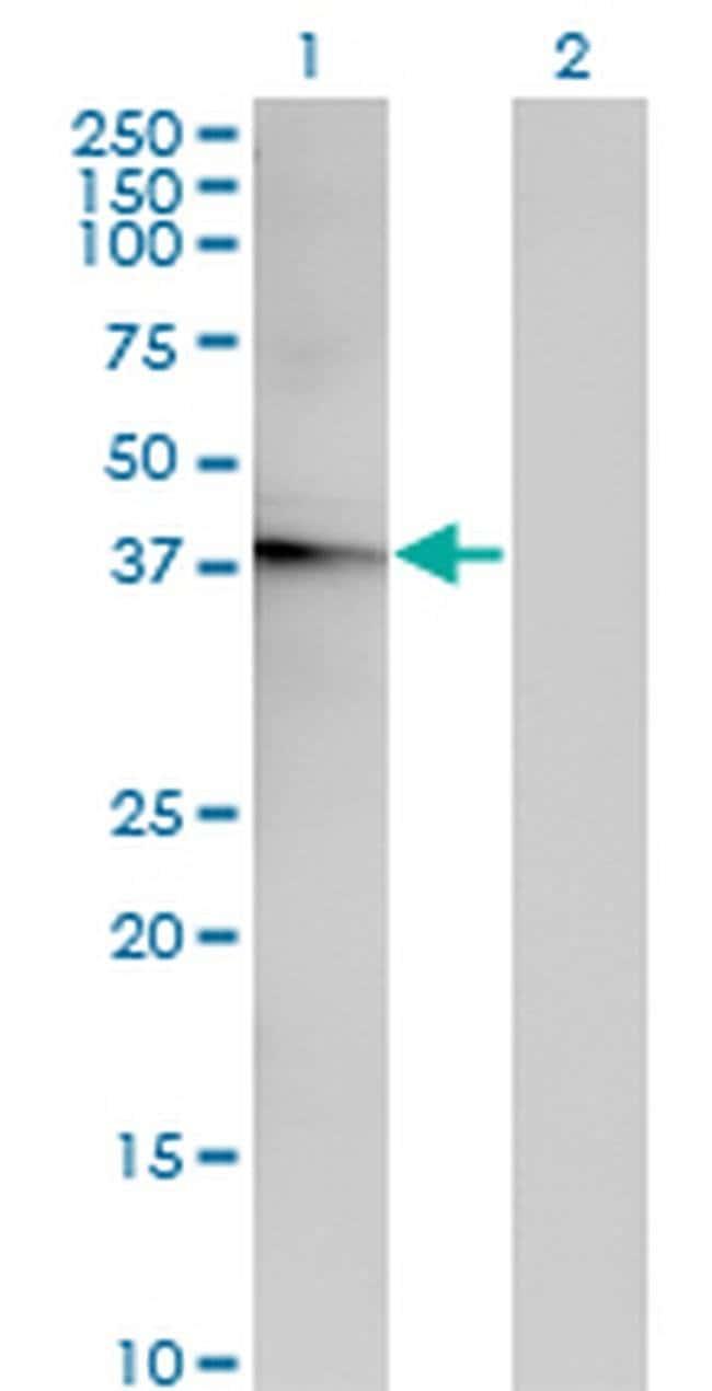 ACOT7 Mouse anti-Human, Clone: 1E7, Invitrogen 100 µg; Unconjugated