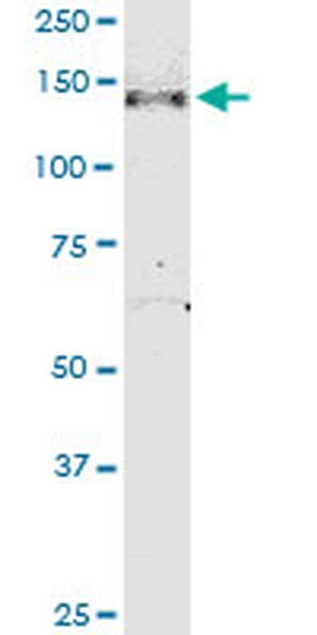NPHP3 Mouse anti-Human, Clone: 3B1, Invitrogen 100 µg; Unconjugated