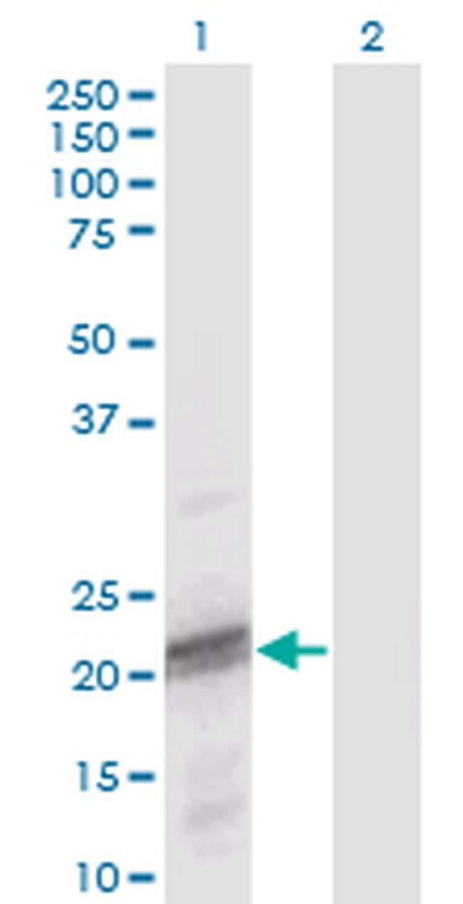 ODAM Mouse anti-Human, Clone: 2F8, Invitrogen 100 µg; Unconjugated