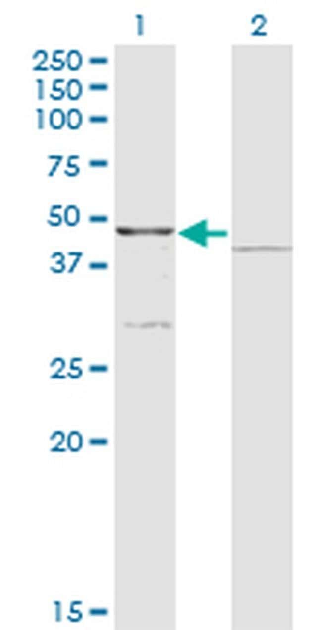 COQ3 Mouse anti-Human, Clone: 6D5, Invitrogen 100 µg; Unconjugated