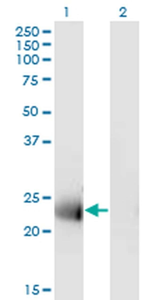 MS4A12 Mouse anti-Human, Clone: 4F4, Invitrogen 100 µg; Unconjugated