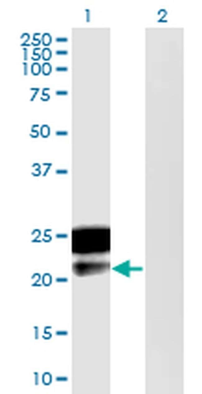 DMRTB1 Mouse anti-Human, Clone: 5E7, Invitrogen 100 µg; Unconjugated